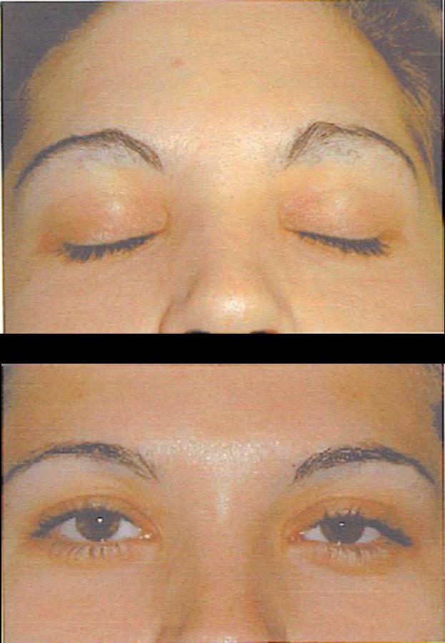 Epilazione laser o epilatore